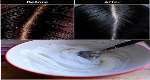 This recipe will remove dandruff instantly