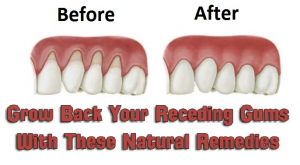 Remedies for the growing back of gums