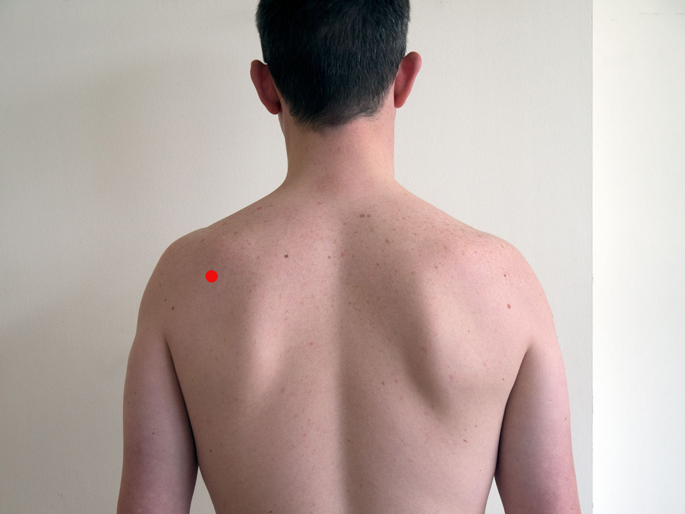 Acupressure points for neck and shoulder ailments